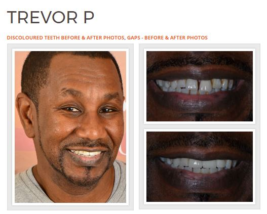 Dr Rahul Doshi Smile Make-Over Expert
