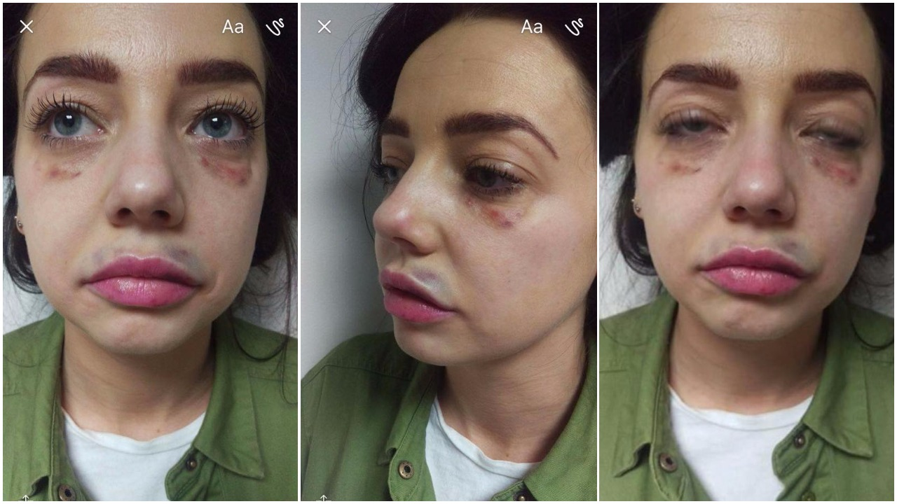 Shocking botched beauty treatment illustrates just why 'time is more valuable than money'