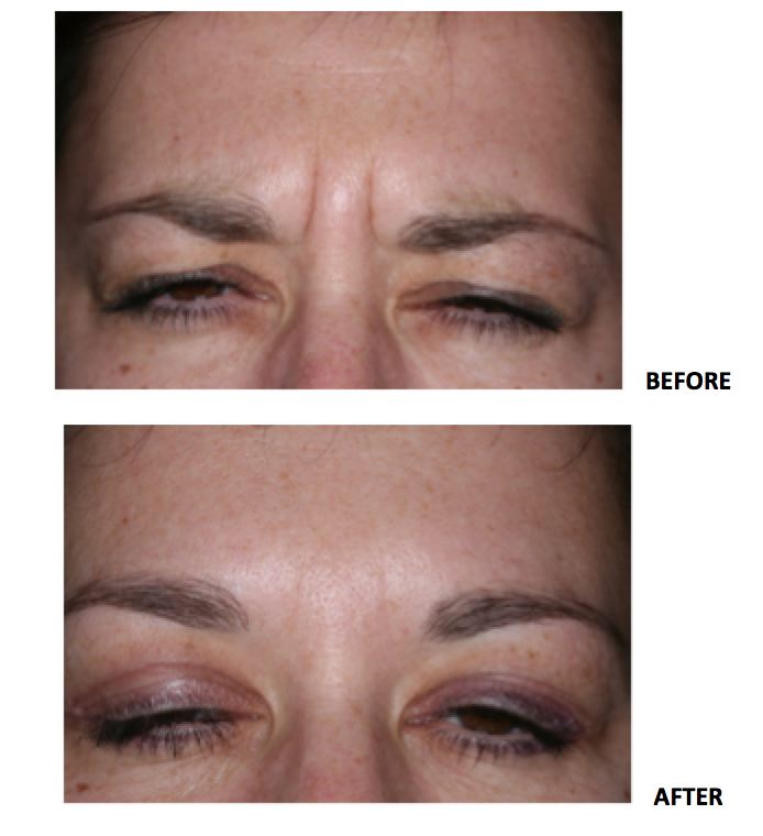 Botox from harry Singh Botox Clinic