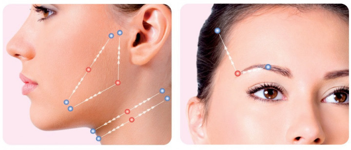 Addressing Skin Laxity using a Silhouette Soft Thread Lift