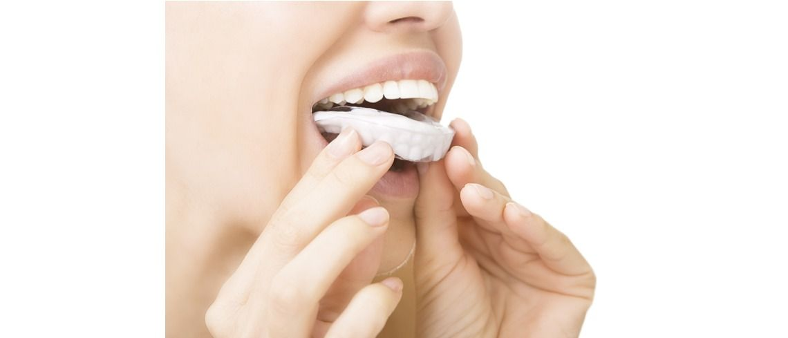 How to make teeth whitening last longer