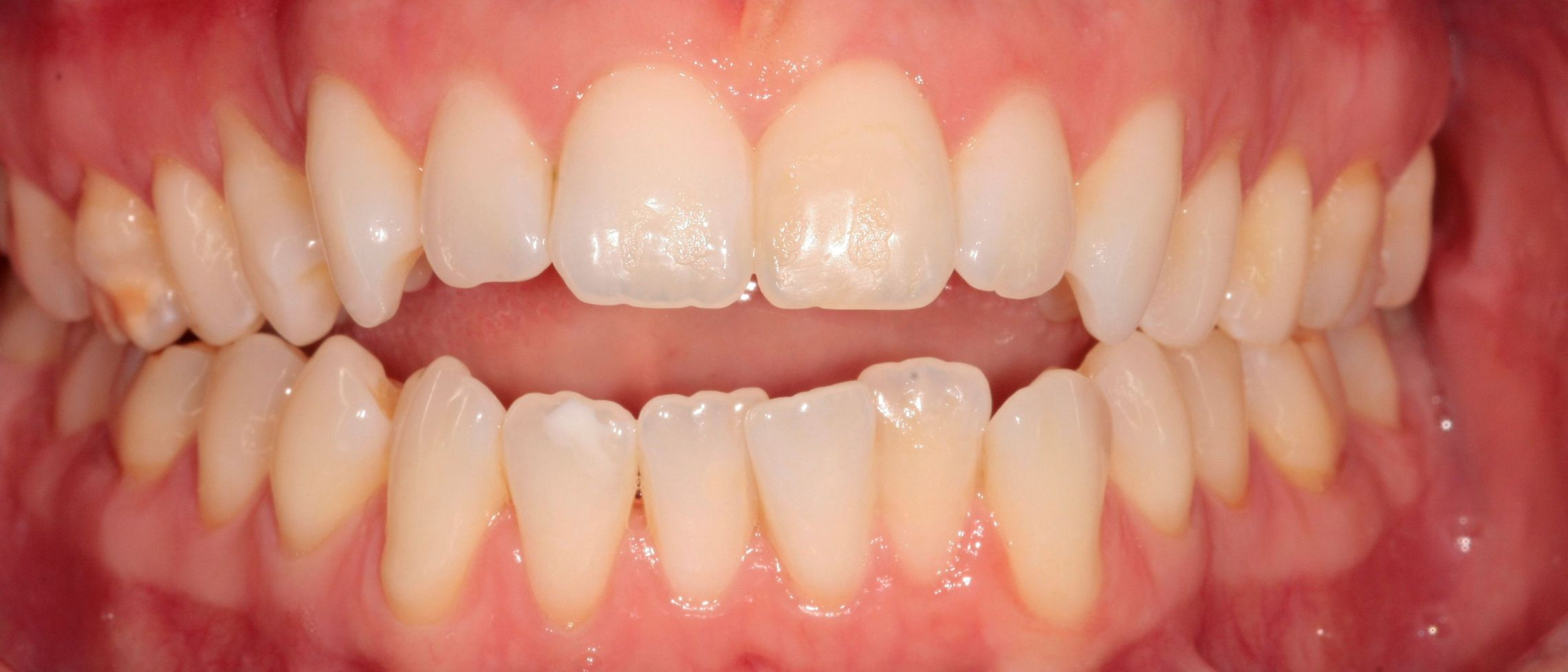 Anterior Open Bite Closed with Braces