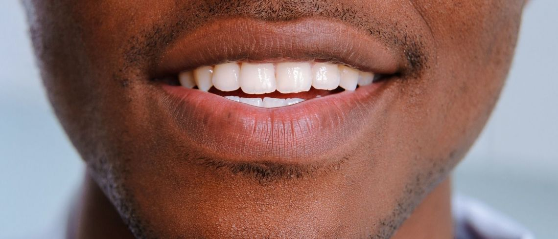 Porcelain Veneers – are they the only way forward to enhance smiles ?