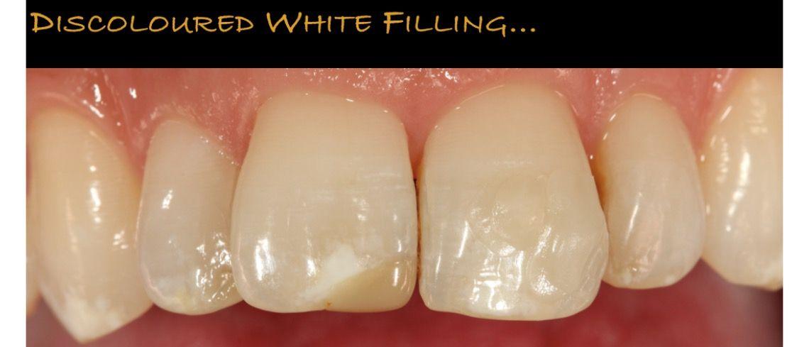A failing discoloured white filling