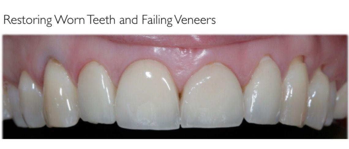 failing fillings and veneers