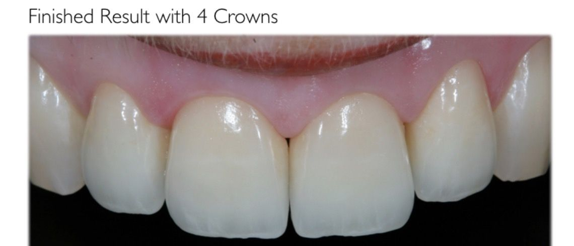 precise planning with the patient to provide their ideal smile with new crowns