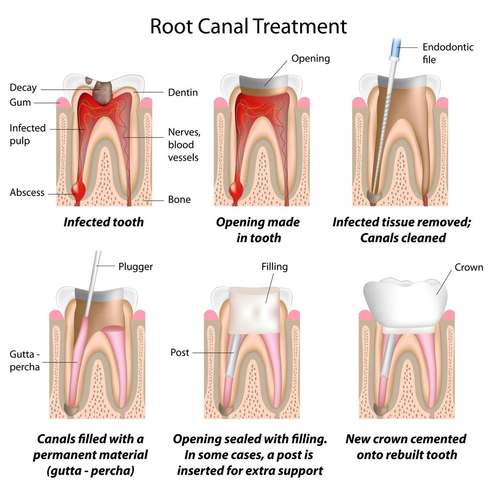 What is Root Canal Treatment? Centre for Dentistry explains.