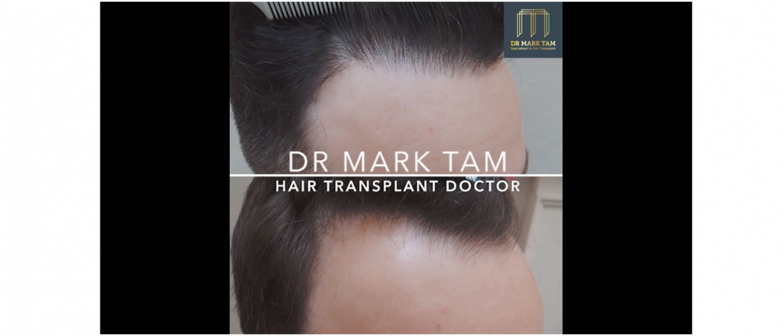 Before and After of Receding Hair Line Restored by Dr Mark Tam