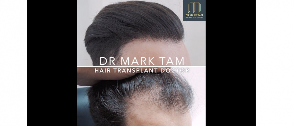 Before and After of Frontal Hair Loss Restore by Dr Mark Tam
