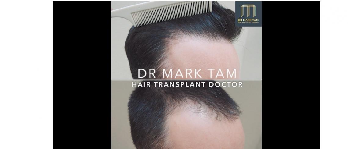 Receding Hair Line, Restored by Dr Mark Tam