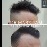Dr Mark Tam - London