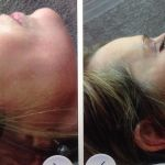 Before and afters of nose augmentation with dermal fill – Straightens that crooked nose without surgery
