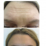 Before & After Botox for the forehead