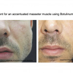 Before & After using Botox in the lower face for an accentuated masseter muscle