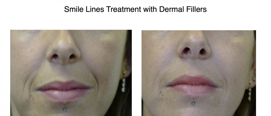 Before & After Dermal Filler for node to mouth lines