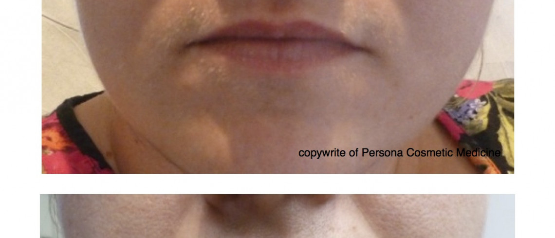 Before & After Dermal Filler for Lip Volume