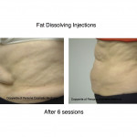 Before & After Lipodissolve/Aqualyx
