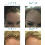 Before & After Laser Skin Rejuvenation for sun damage & pigmentation