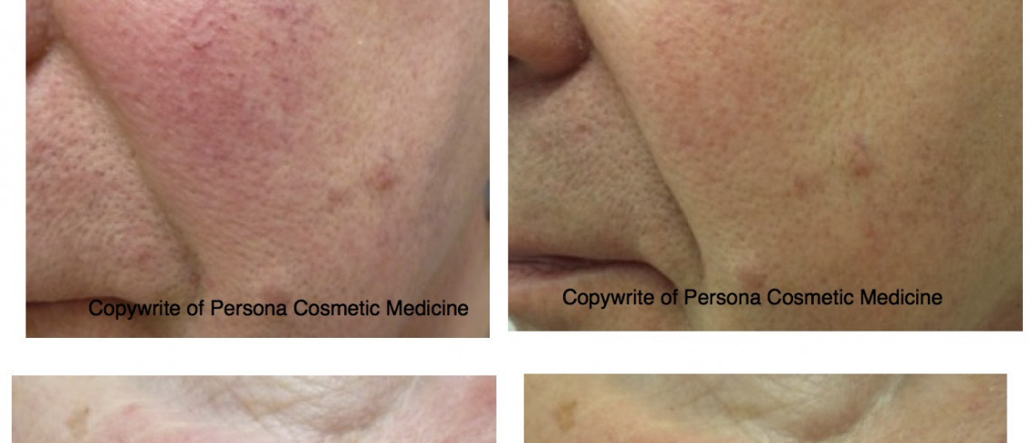 Before & After Laser Skin Rejuvenation for facial thread veins