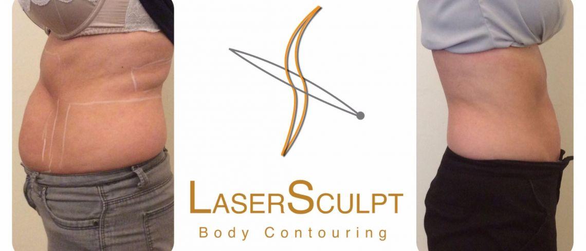 LaserSculpt
