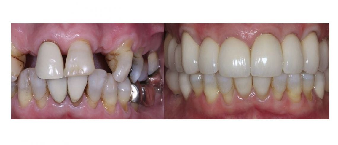 Why dental implants are truly lifechanging if you've lost a tooth