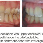 reverse overbite correction with Invisalign