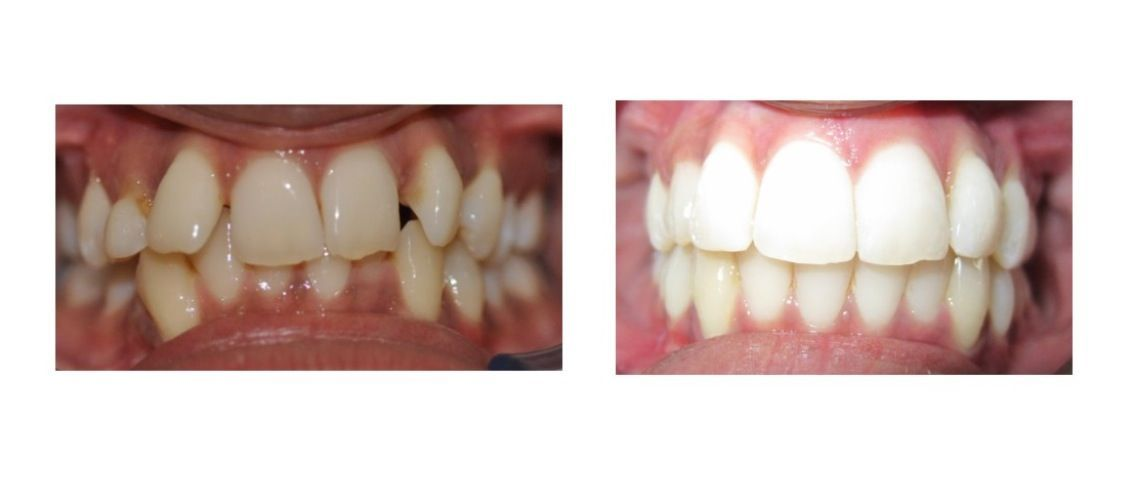 Clinical speaker for Invisalign