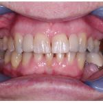 case7 - after treatment