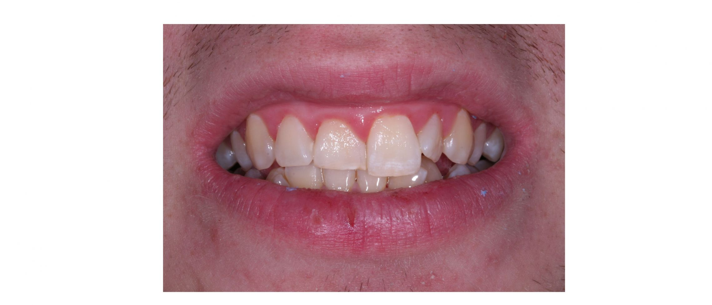 case2 - before treatment
