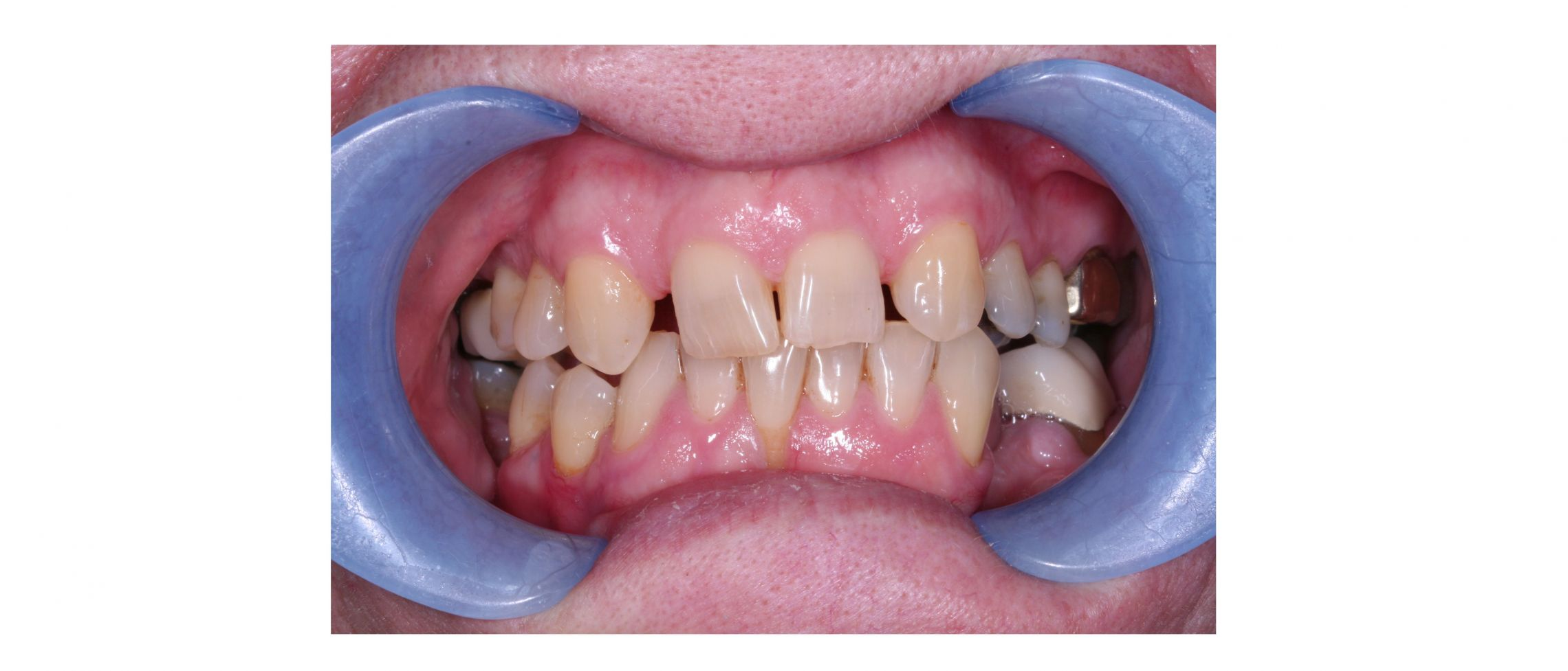 case7 - before treatment