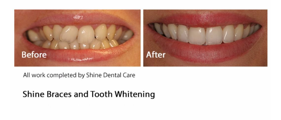 Shine Dental Care Ltd