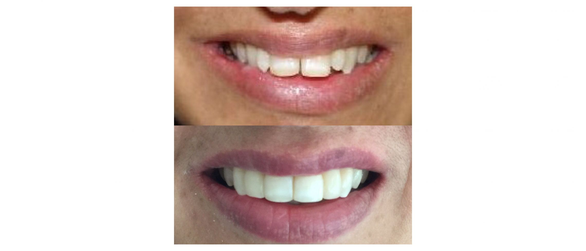 Smile design with veneers and teeth whitening