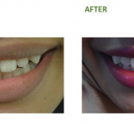 Teeth whitening is compared to a vita shade guide, so it is an objective measure