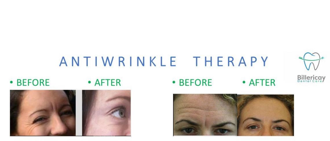anti wrinkle theray using botulinium toxin