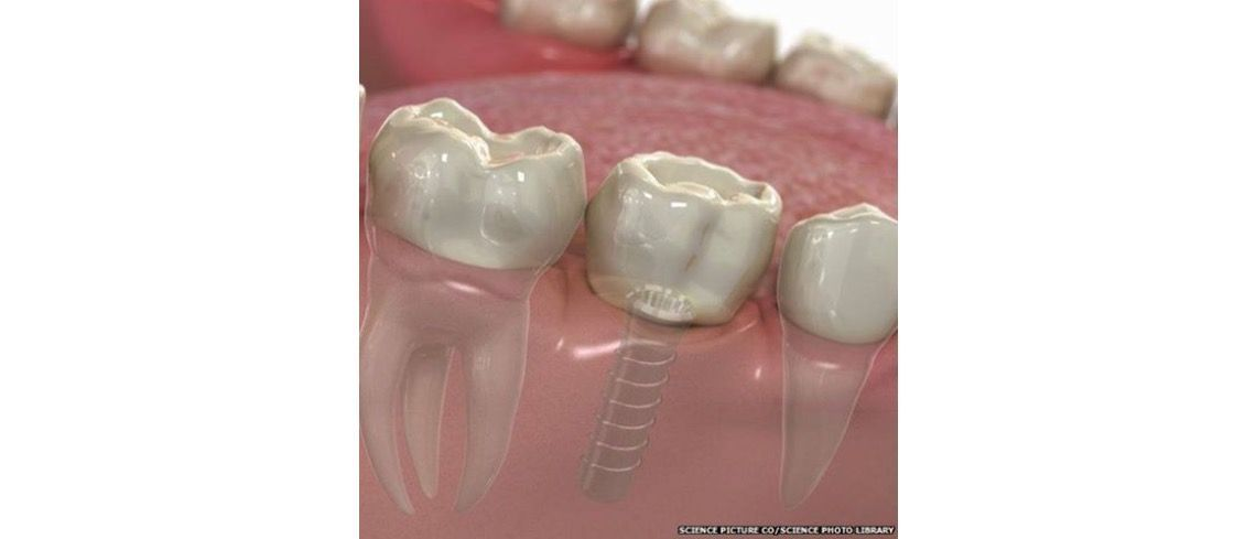 Looking for an implant dentist in Essex?