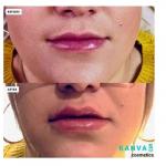 0.5ml lips