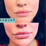 1ml lips