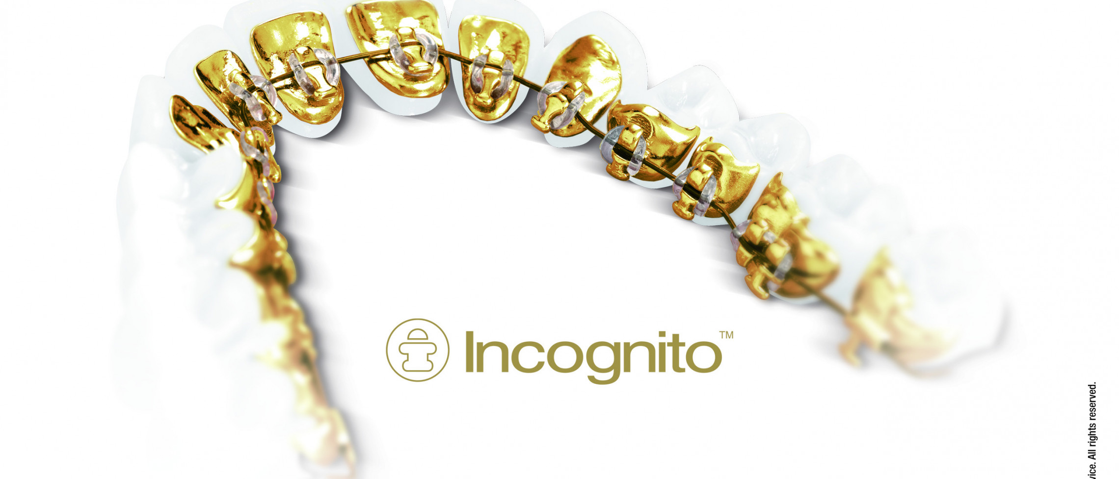 5 Frequently asked questions about Incognito Braces
