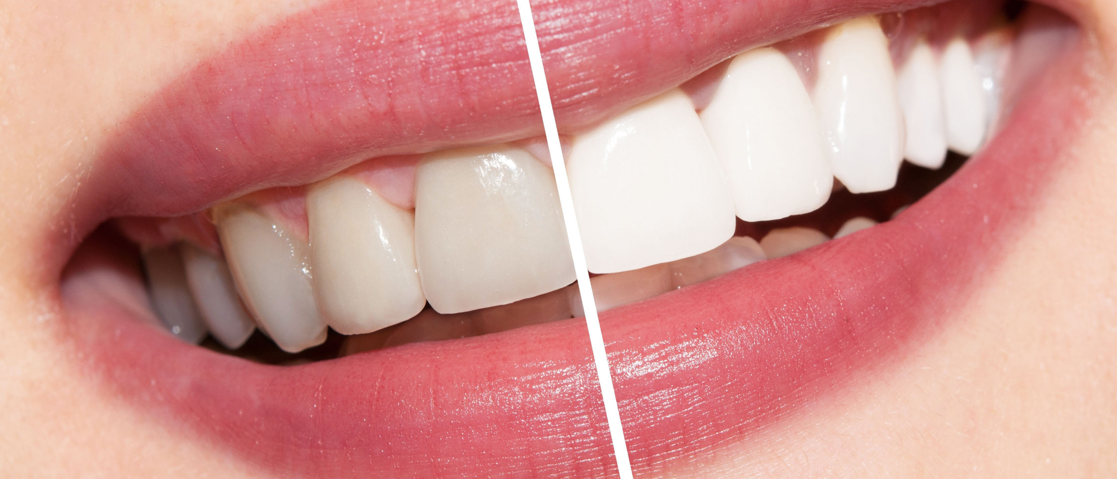 5 Key Things to know about Teeth Whitening