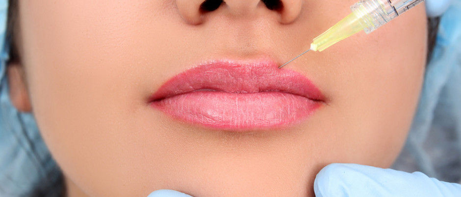 12 questions you MUST ask before you get lip filler treatment