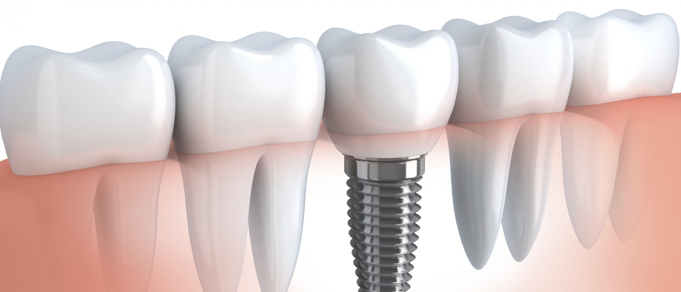 Different Dental Implant Procedures