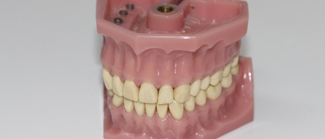 The lifespan of dental implants and their support