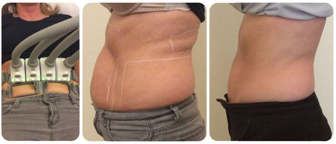 SculpSure Back and Abdominal Fat Reduction at LaserSculpt Clinic