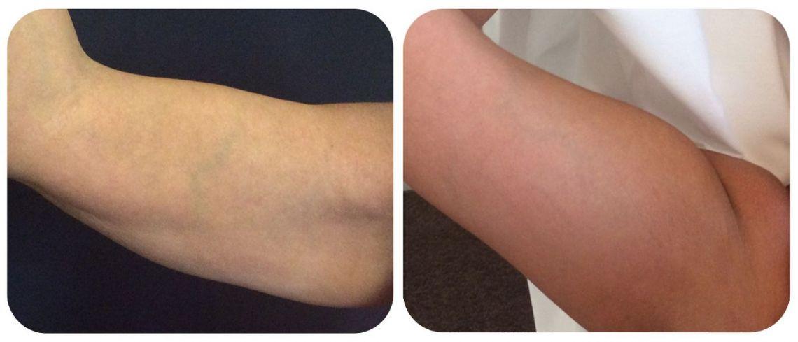 SculpSure Arm Fat Reduction at LaserSculpt Clinic