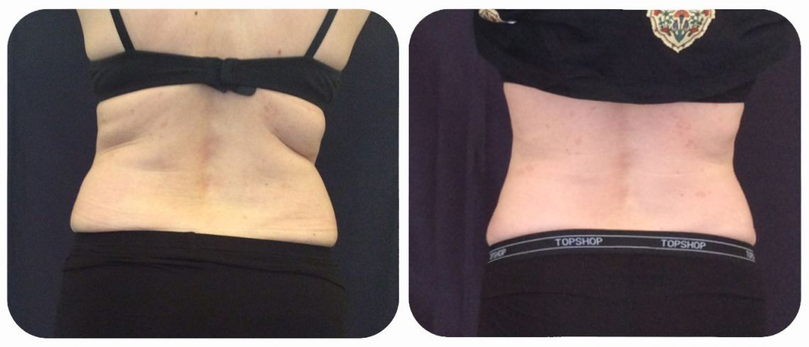 SculpSure Bra Strap Fat Reduction at LaserSculpt Clinic