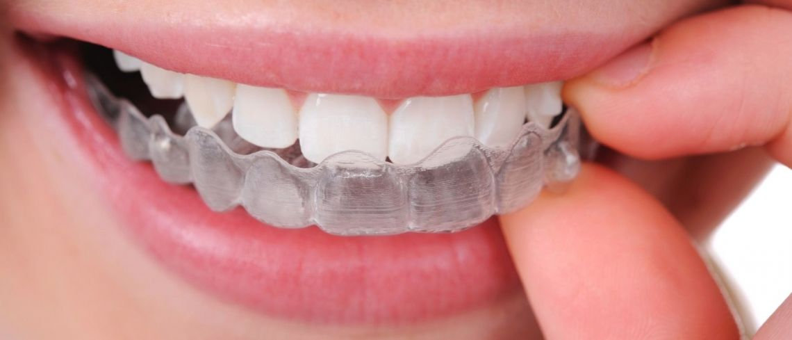 Fixed v removable braces – what are my options for straighter teeth?