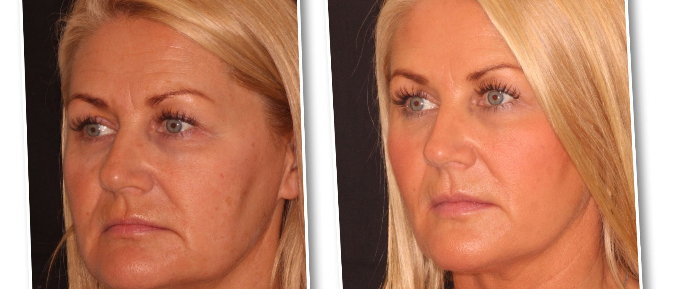 Softly does it. Can you really have a facelift without surgery?
