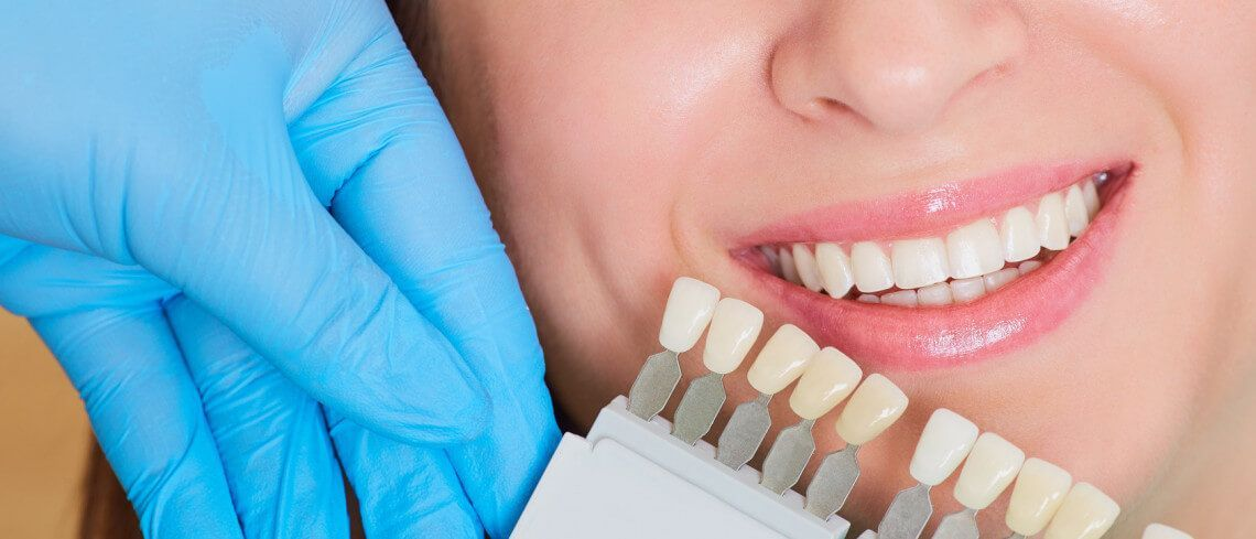 White Dental Beauty Teeth Whitening Tips