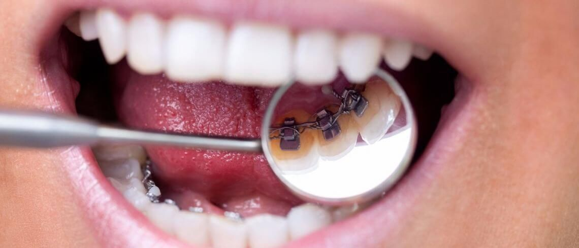 The Short Guide to Lingual Braces