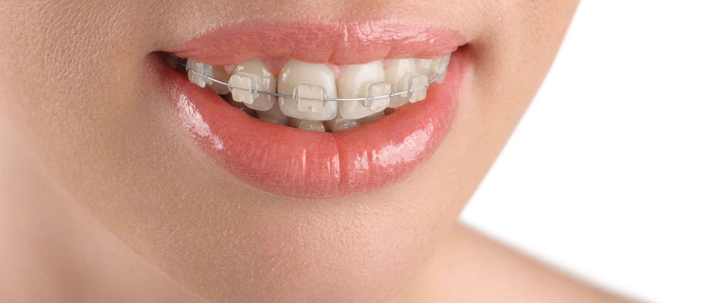 Considering ceramic fixed braces?